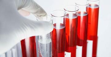 Проверка щитовидной железы по анализу крови