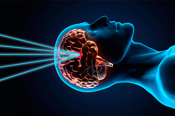 радиохирургическое лечение