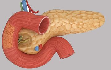 рак поджелудочной железы при сахарном диабете
