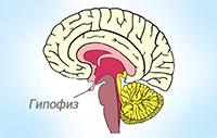 гормонально активная опухоль