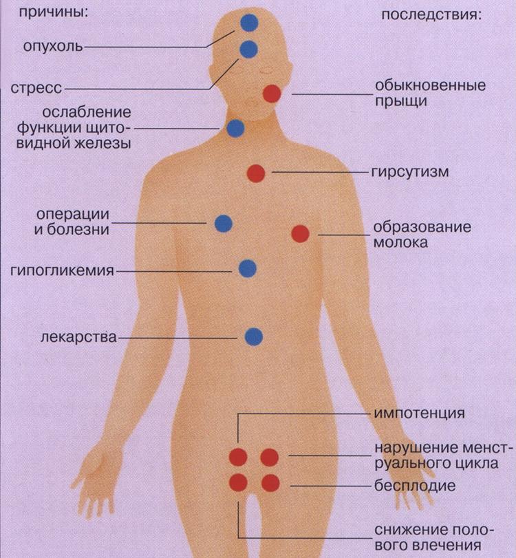 последствия высокого пролактина