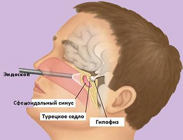 удаление аденомы гипофиза через нос