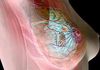 аденома груди