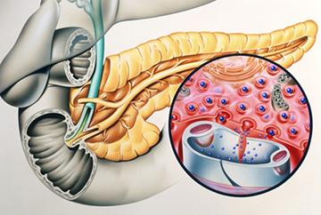 хронический панкреатит поджелудочной железы