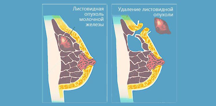 листовидная фиброаденома - удаление