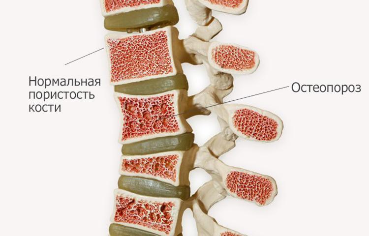 слабая пористая кость с развивающимся остеопорозом