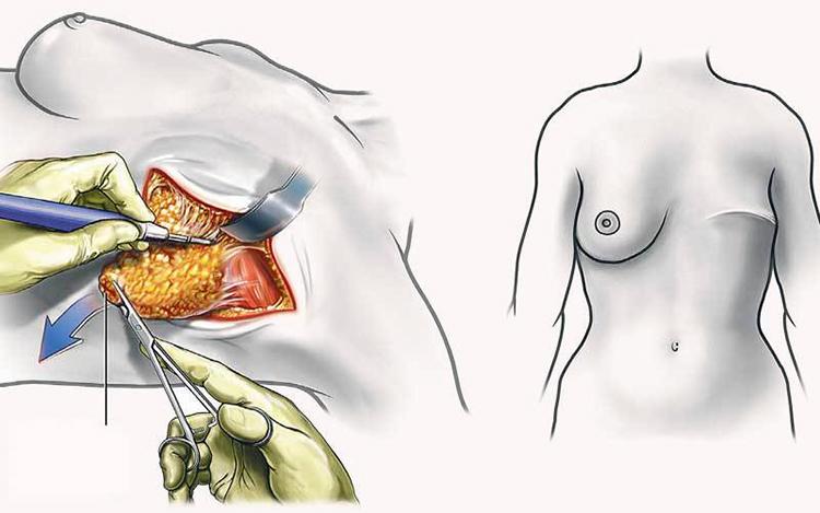 рак груди - удаление