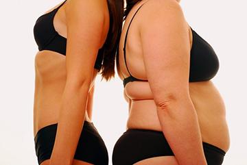 ожирение из за заболевания кушинга