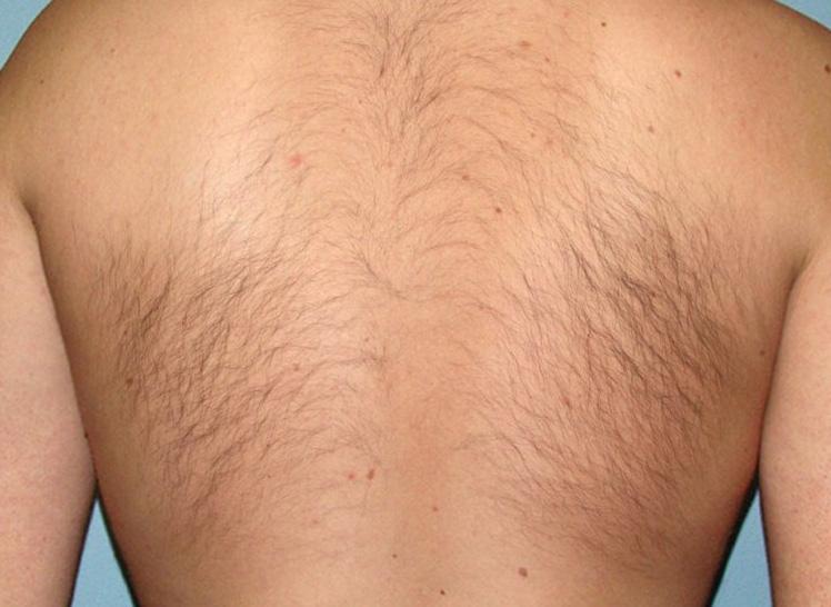 волосы на спине у мужчины