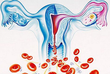 маточные кровотечения