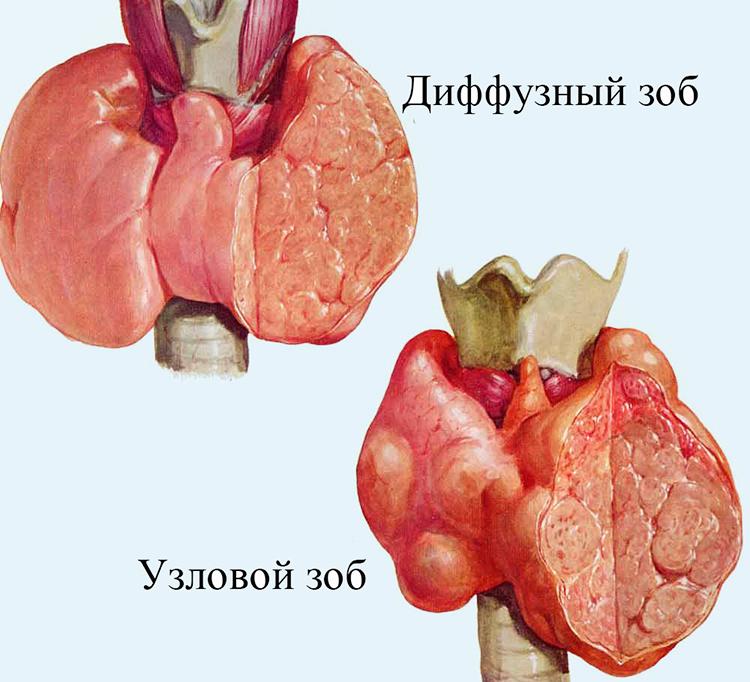 виды зоба щитовидки