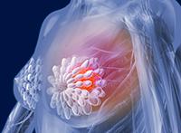 грудь пораженная раком