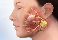 воспалительный процесс в слюнных железах