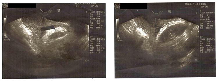 щитовидная железа - ультразвук