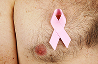 рак груди у мужчины