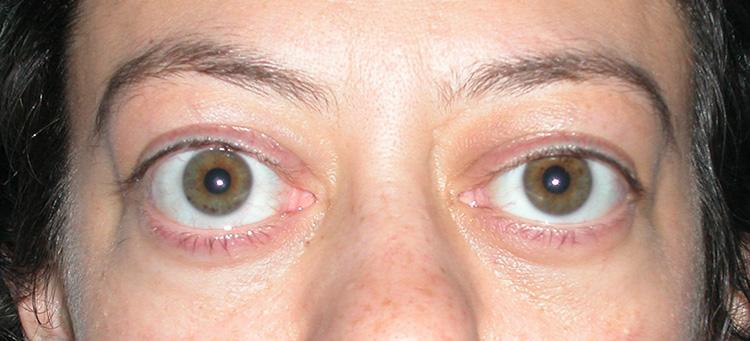 глаза навыкате