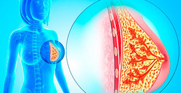 болезни молочных желез