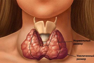 Нормальная и увеличенная щитовидка