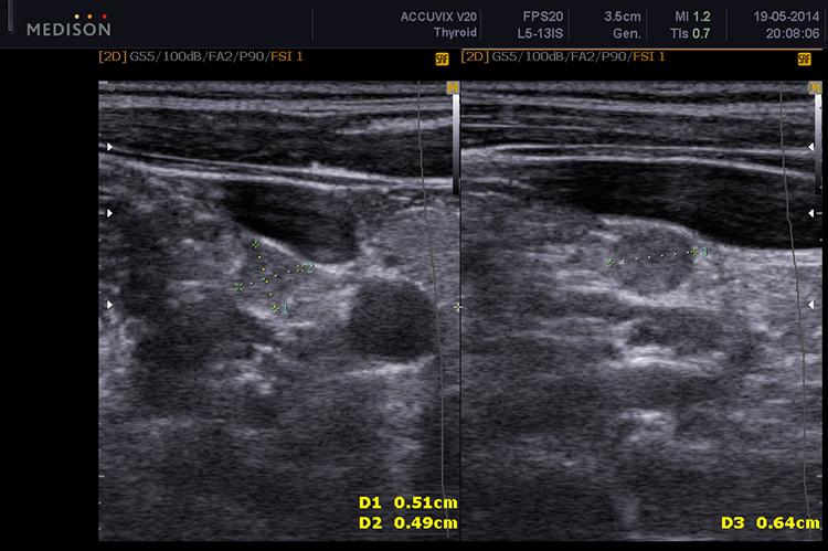 Метастазирование рака щитовидной железы