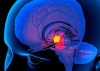 небольшое новообразование мозга