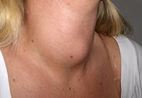 гипертрофия щитовидной железы