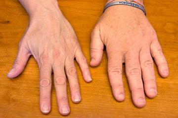 утолщение пальцев