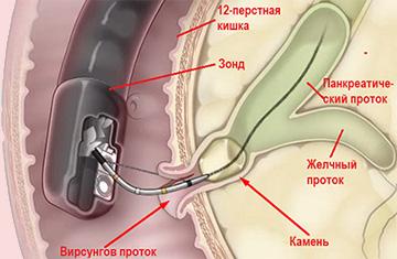 эндоскопическое удаление камня