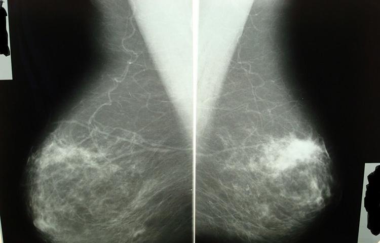 уплотнения на рентгене