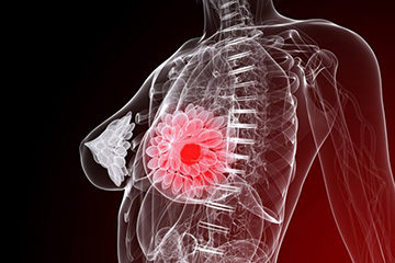 очаговый фиброаденоматоз молочной железы