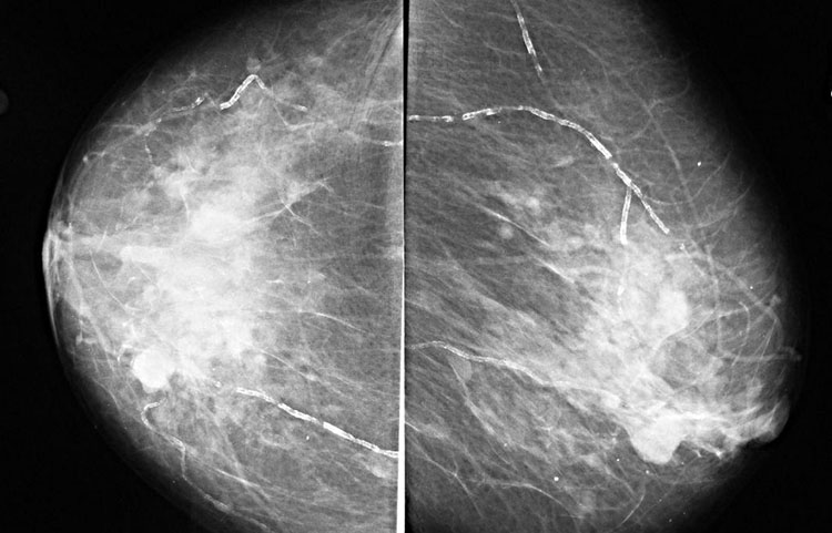 маммография молочных желех