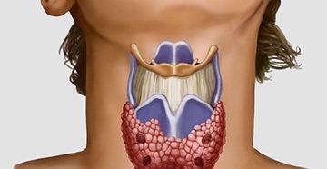 зоб и щитовидная железа