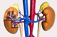 опухоли в надпочечниках