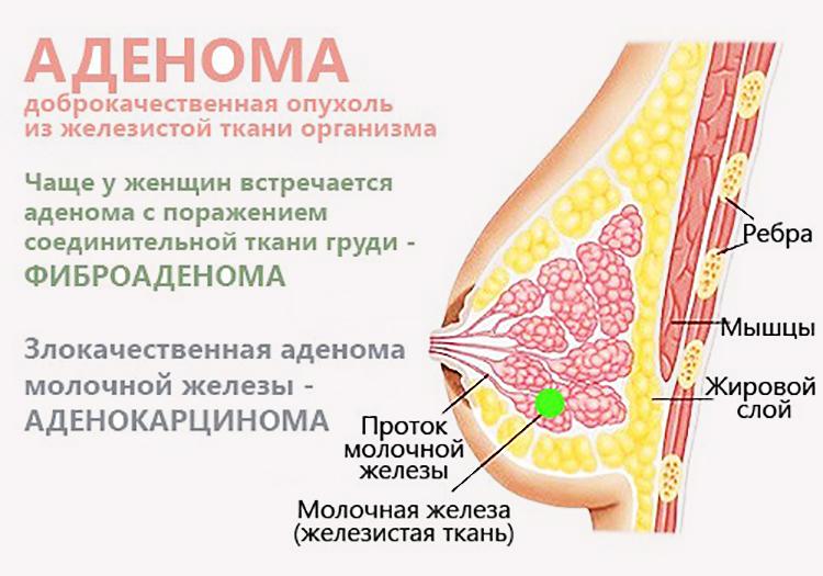 виды опухоли аденомы груди