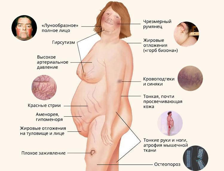 Иценко-Кушинга симптоматика