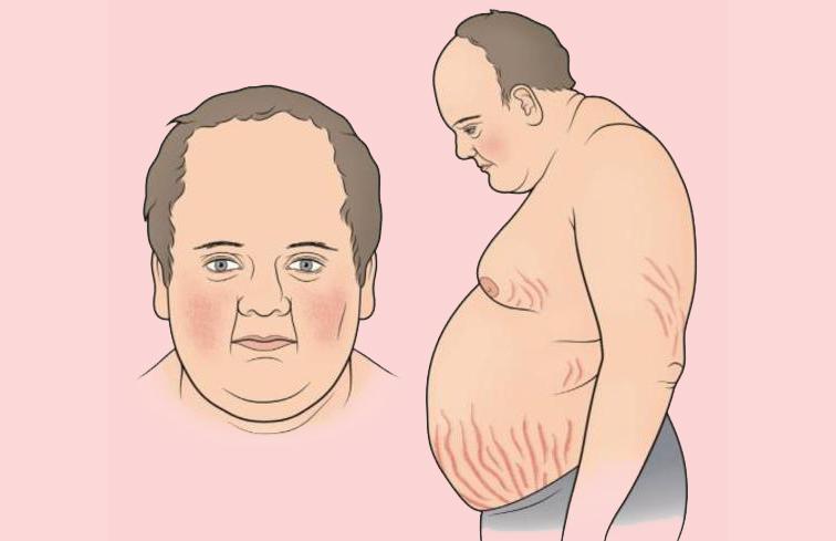 болезнь иценко кушинга - фото