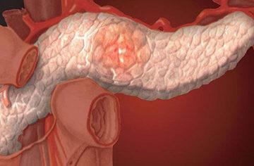 боли в поджелудочной железе