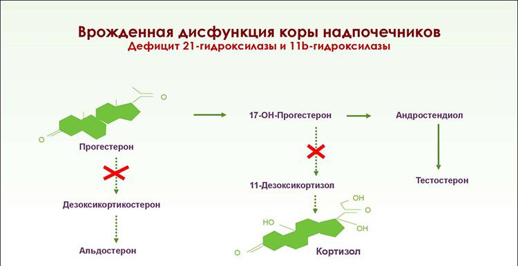 синдром дефицита 21-гидроксилазы