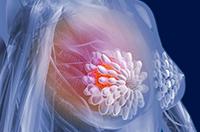 классификация болезни рака груди