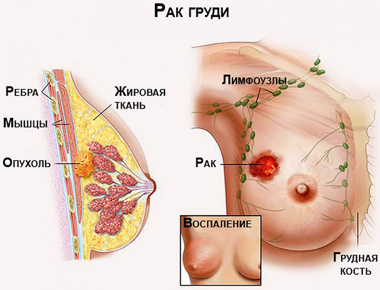 раковая опухоль в молочной железе
