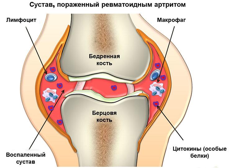 сустав с артритом