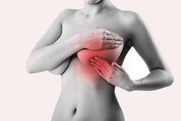опухоль женской груди