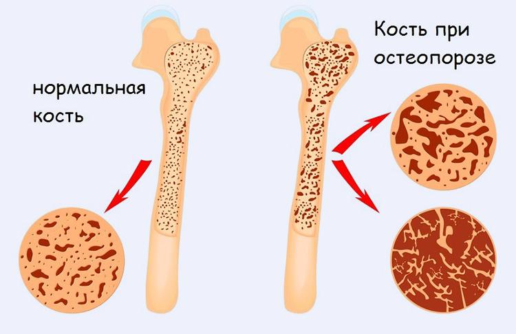 полая кость