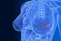 опухоль груди