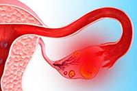 воспаление яичника