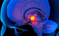 патологии мозга