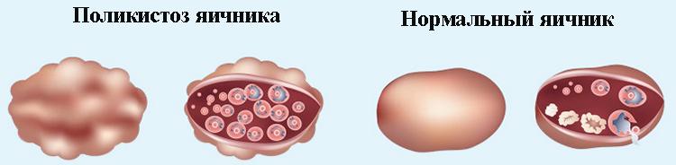 поликситоз и нормальный яичник
