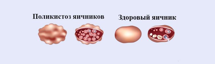 поликистозный яичник
