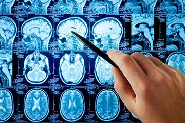 мрт мозга и гипофиза