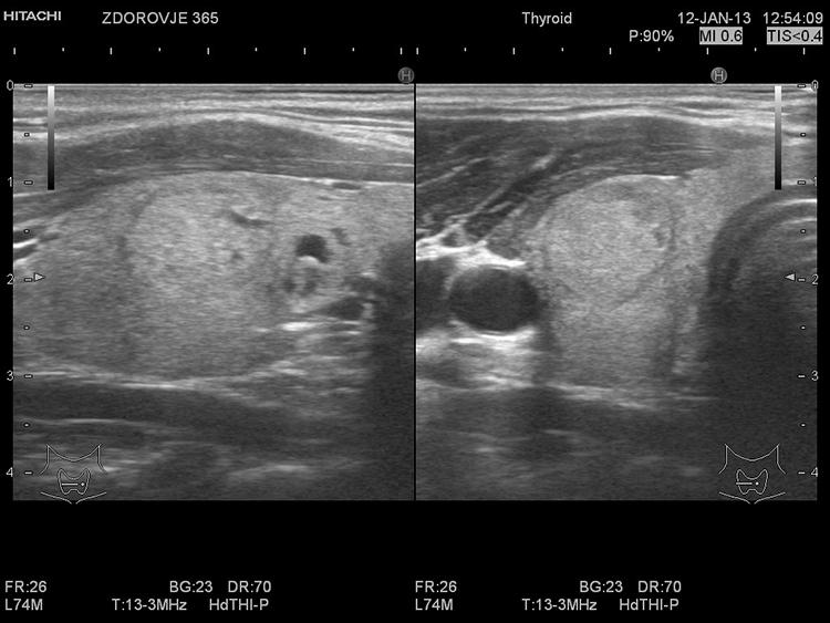 Лечение плеоморфная аденома слюнной железы лечение