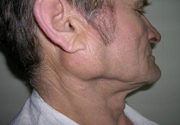 опухоль околоушной железы